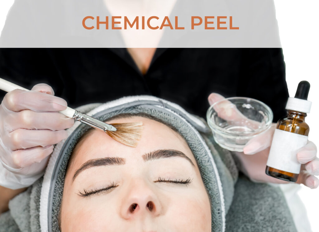 Chemical Peel - Click to shop our online store