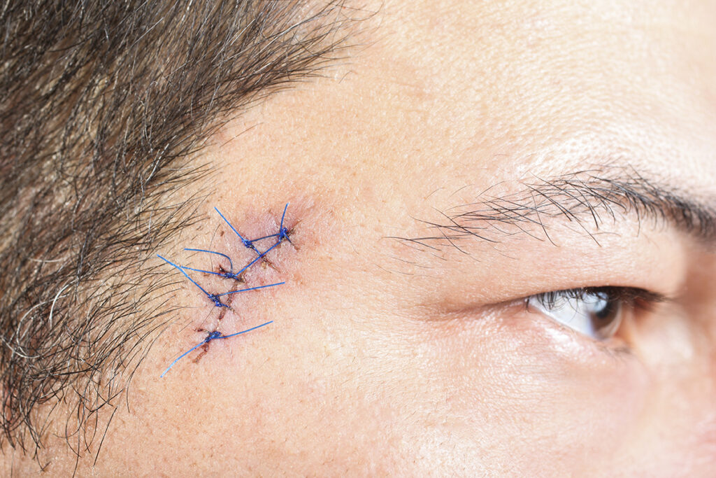 Close up photo of surgical sutures from a facial procedure