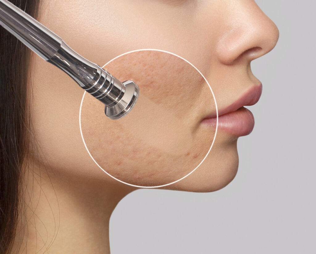Microdermabrasion Services - Photo closeup of how Microdermabrasion works