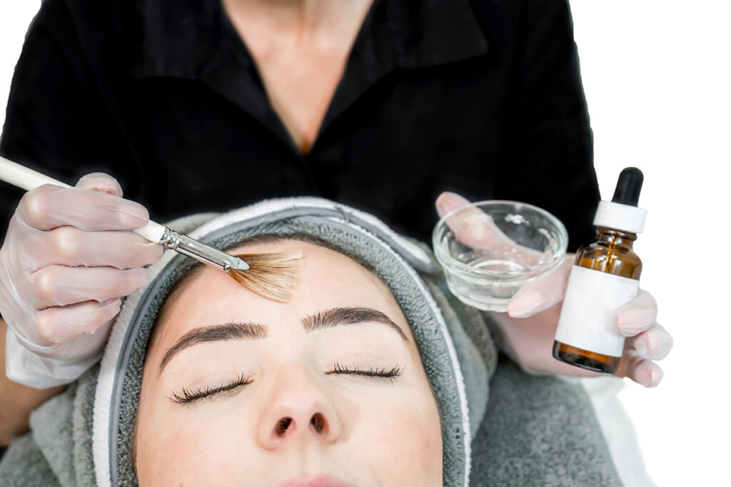 Chemical Peel Service - Photo of Woman getting application done to her forehead