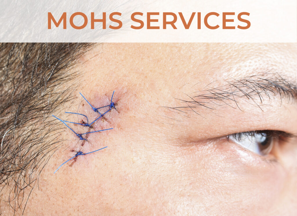 Mohs Services - Click to learn more